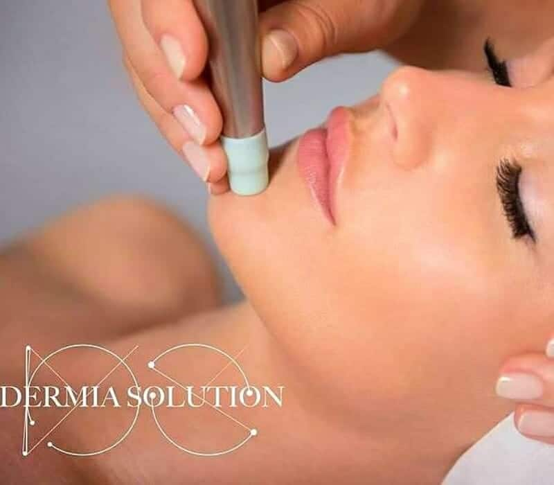 Dermia Solution Face Treatment Kauneushoitola BellaHelena Oulu