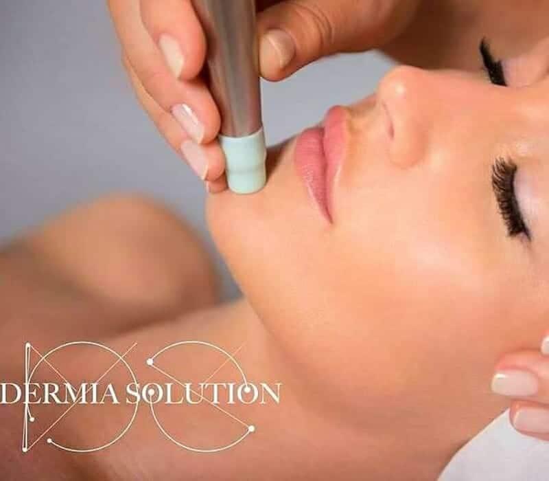 Dermia Solution Face Treatment Kauneushoitola BellaHelena Oulu