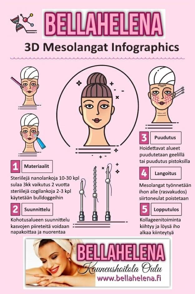 Kauneushoitola BellaHelena Oulu Finland 3D Mesolangat Infographics - Mesolangat Kohottaa Kasvojen Piirteitä