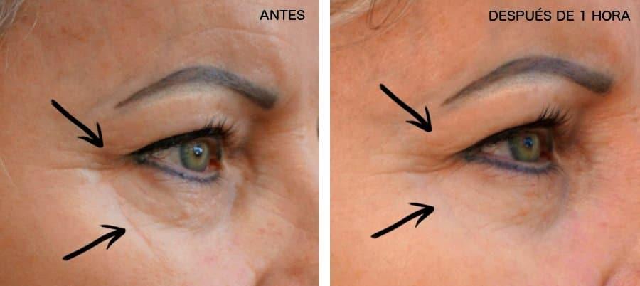 01-Skinfaktor-ennen-jälkeen-kuva